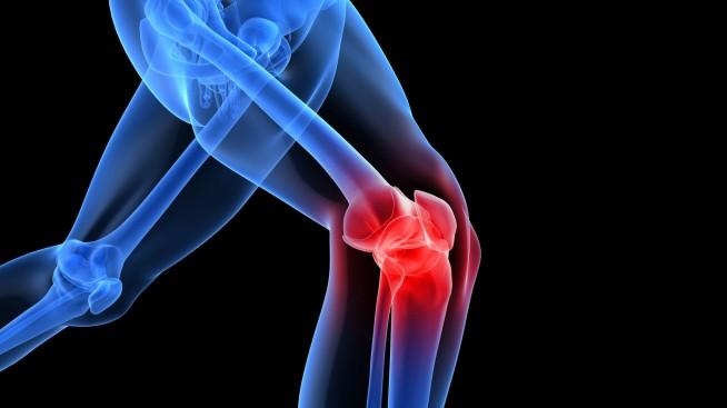 Stress meccanico del ginocchio, le 3 principali cause dei nostri infortuni